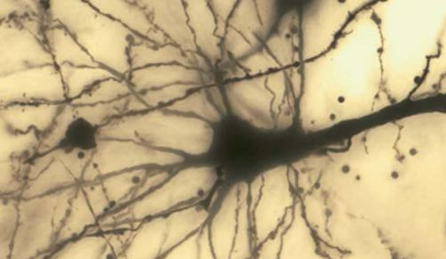 Spindle neuron