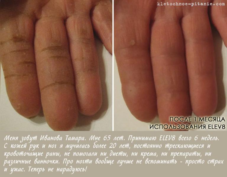 Elev8 кожа