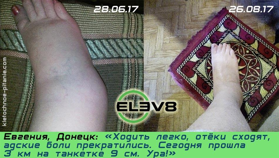 Elev8 против отеков
