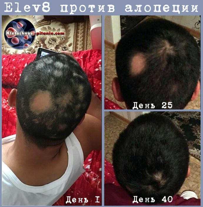 Elev8 лысина