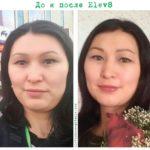 Элев 8 фото до и после