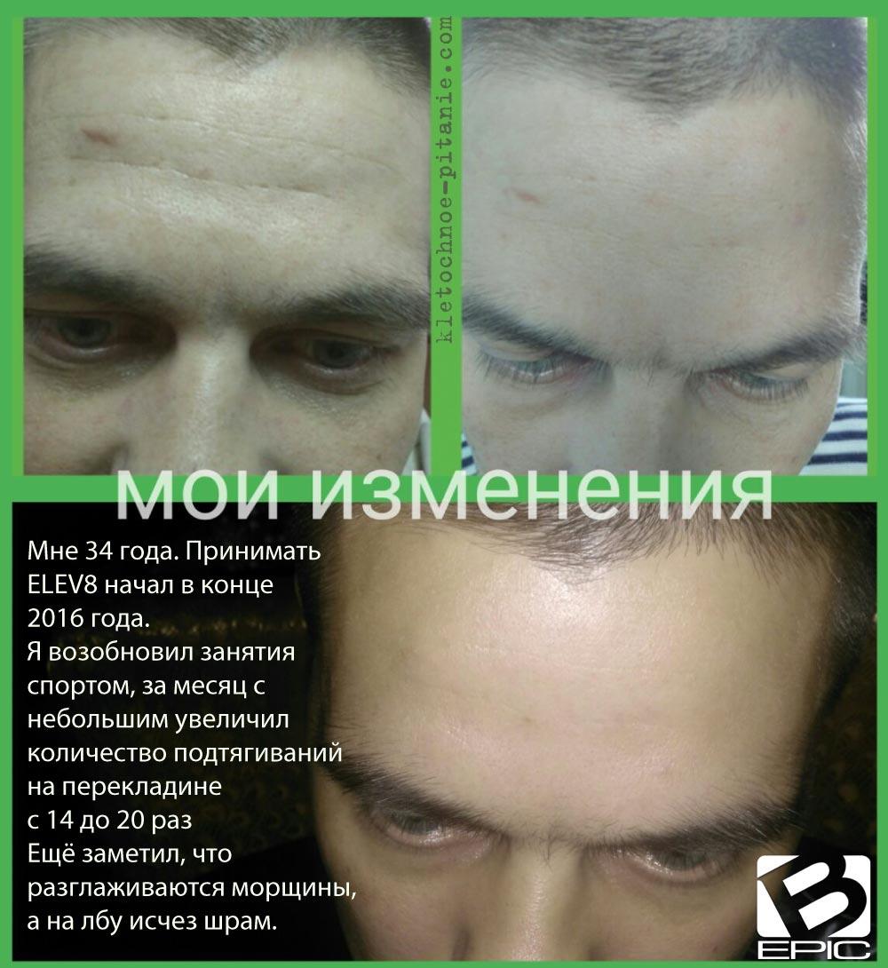 Влияние Elev8 на морщины
