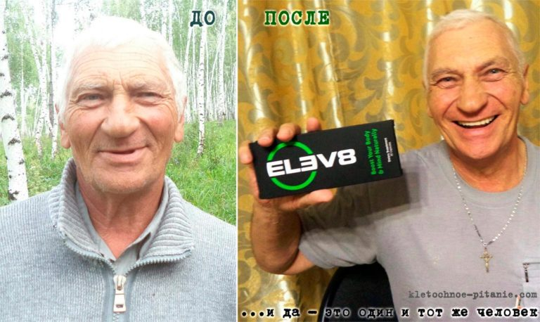 Фото до и после Elev8