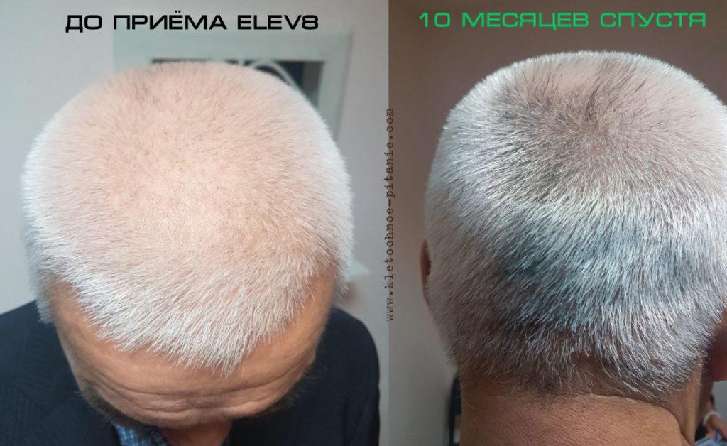Волосы и Седина c Elev8
