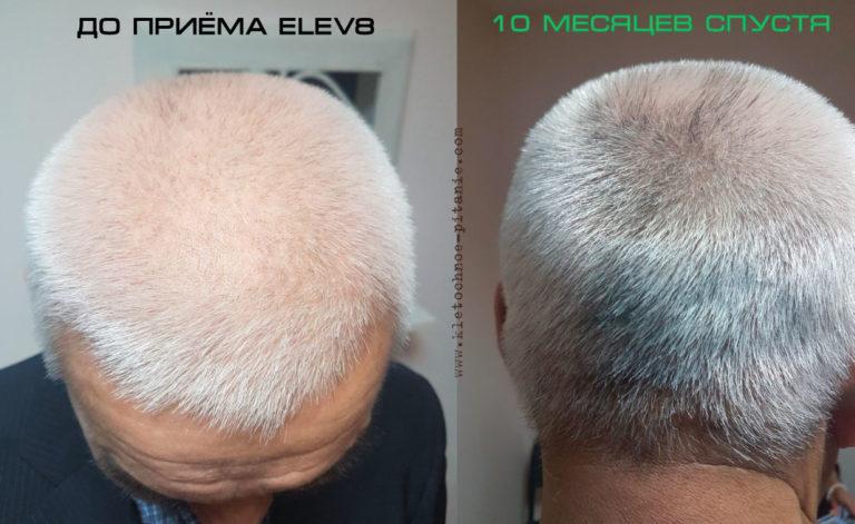 elev8 фото до и после волосы