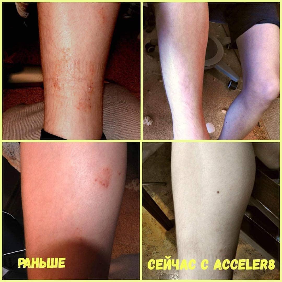 Acceler8 при атопическом дерматите