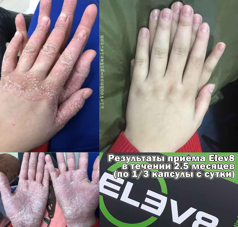 Лечение псориаза с Elev8