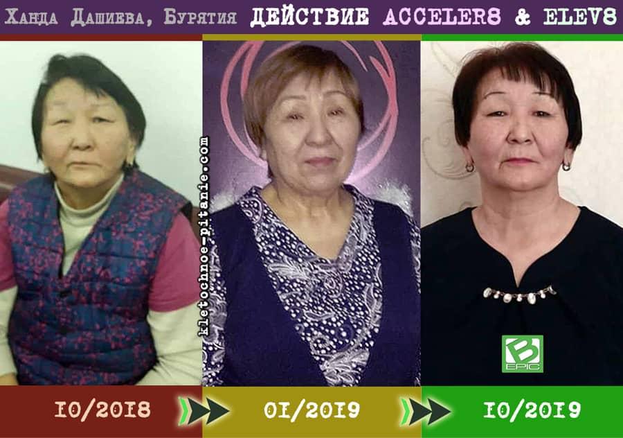 Elev8 омоложение (фото до и после)