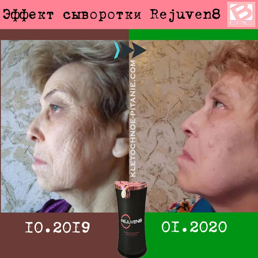 Bepic's Rejuven8 before and after