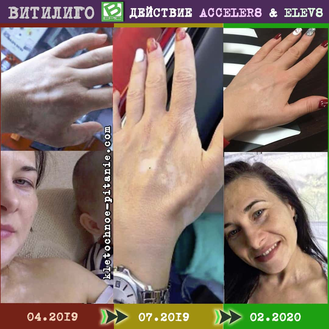 Elev8 against vitiligo