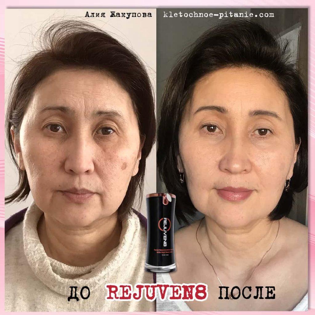 Bepic Rejuven8 до и после