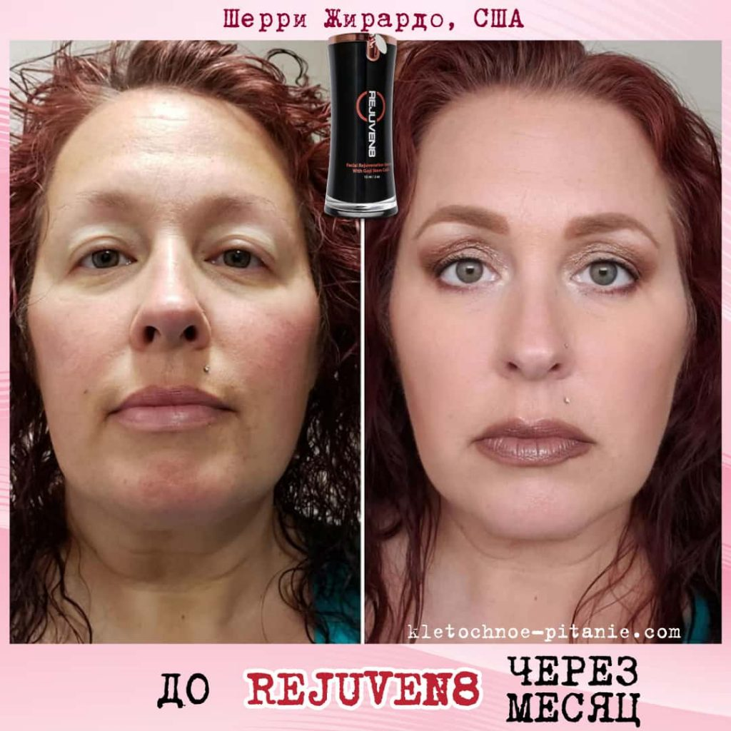 Bepic's Rejuven8 before and after (USA)