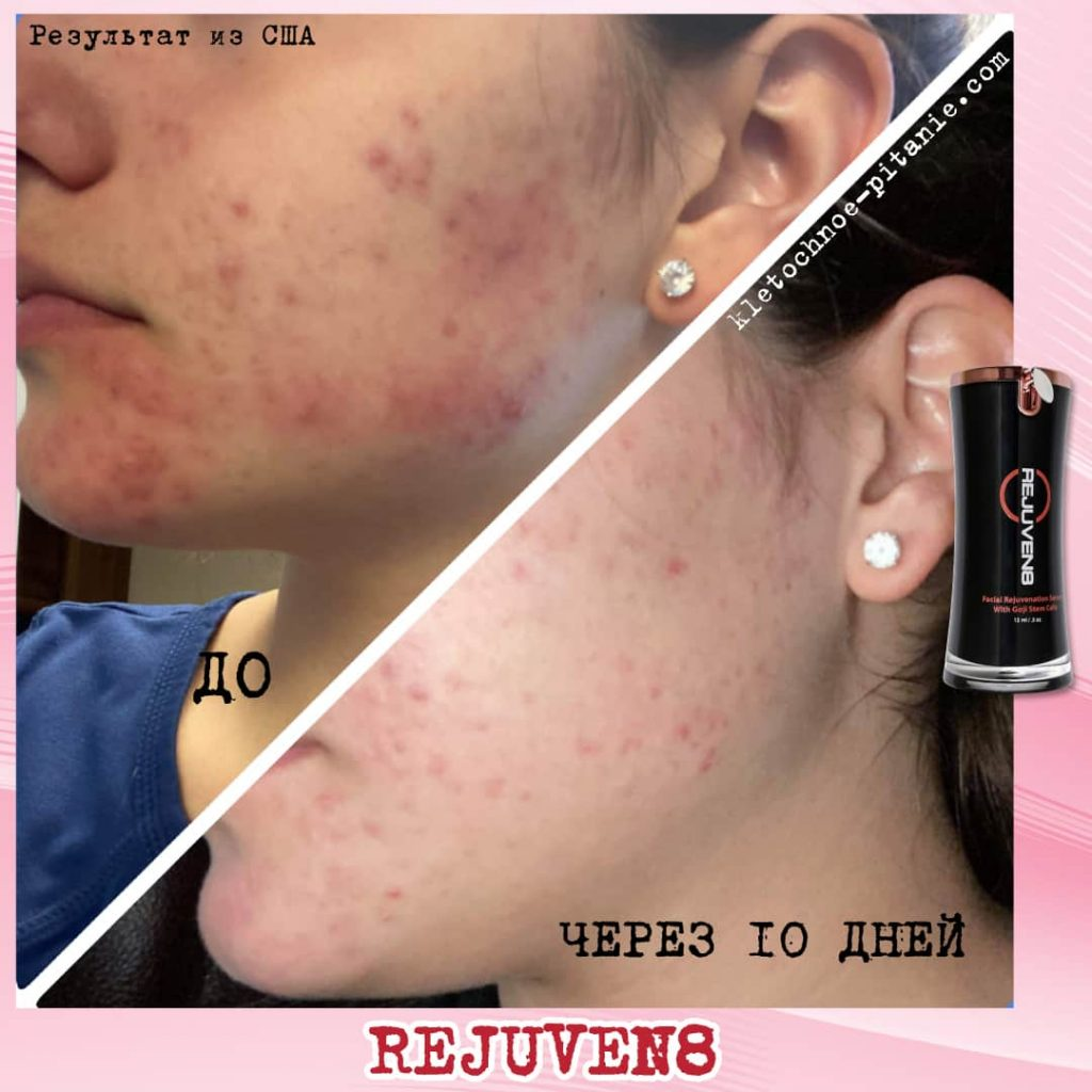 bepic rejuven8 usa review
